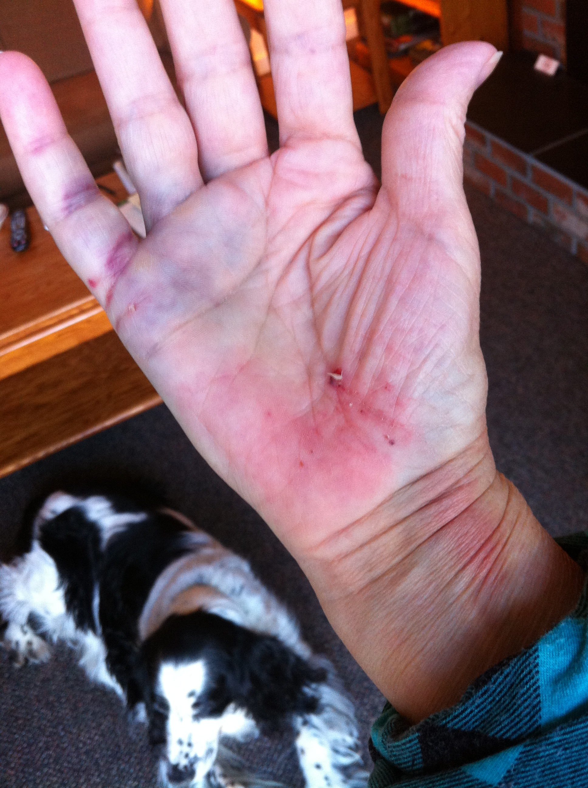 My hand shortly after the fall. It doesn't look too bad.