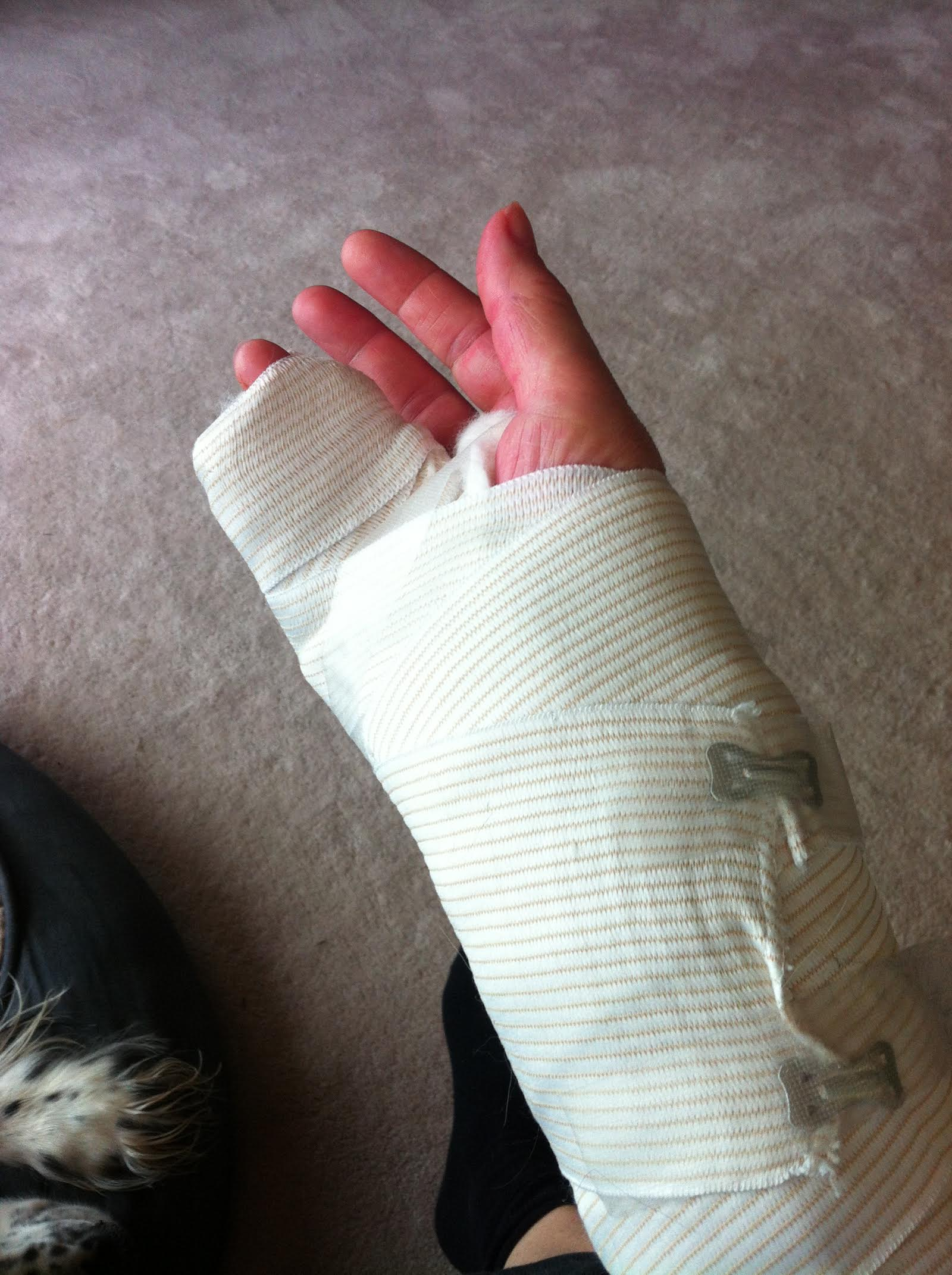 My hand after surgery. Worse.