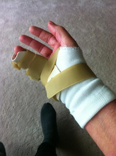 My splint for 6 weeks. I'm getting used to it.